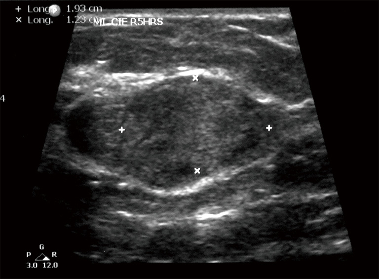 Figure 2 Macrolobular Iso Echoic And Well Cir Scribed 1 93 Cm Nodule Bi Rads 3 Bi Radst Imaging Reporting And Data System